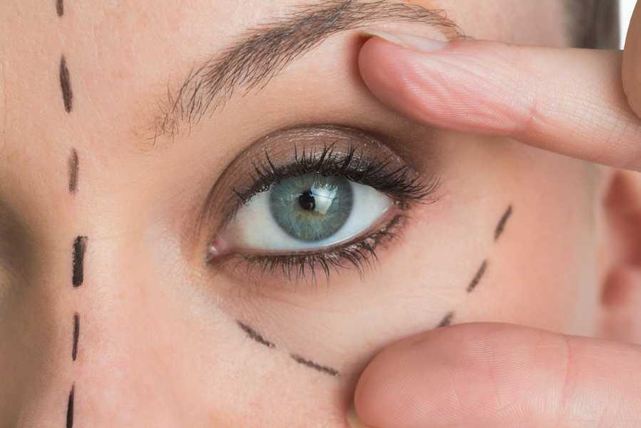 Blefaroplastia a laser - Dr. Iran Sanches