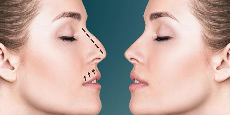 Rinoplastia: Beleza e autoestima
