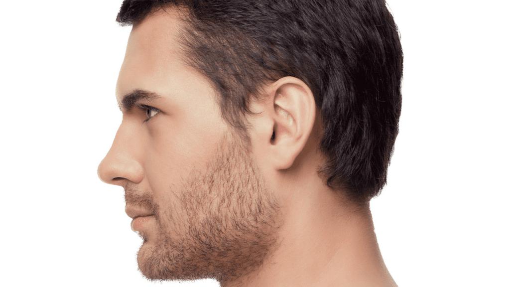 Rinoplastia masculina: entenda