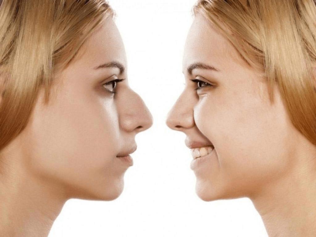 Rinoplastia na adolescência: o que levar em consideração
