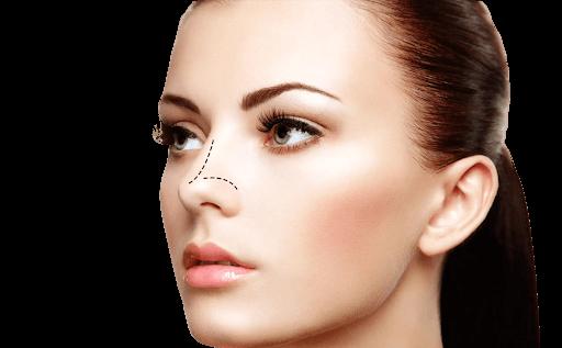Como funciona a rinomodelação ou preenchimento nasal?