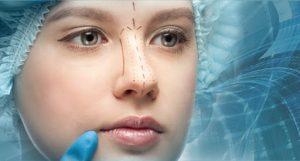Pré-operatório: o que fazer antes da cirurgia de nariz?