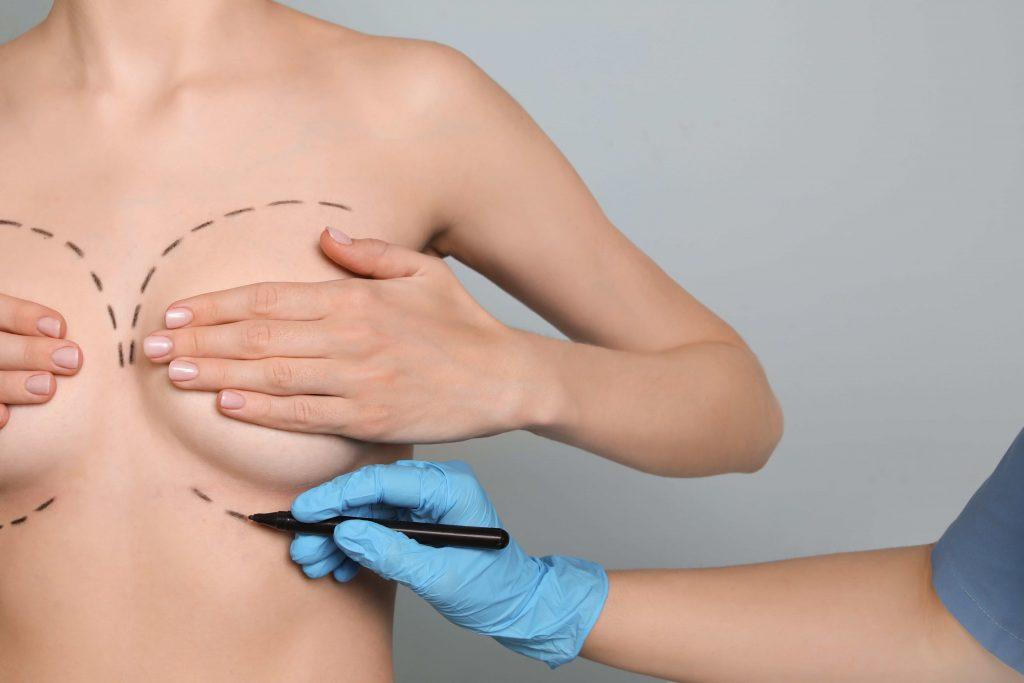 Foto doutor desenhando corpo mulher demonstrando Mastoplastia