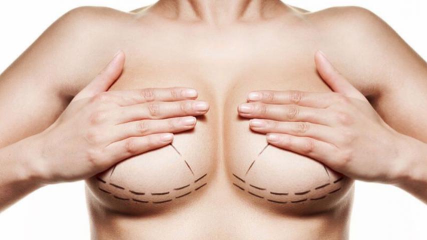 Mulher com procedimento de mamoplastia redutora