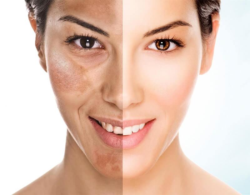 Mulher com rosto com procedimento de peeling de fenol