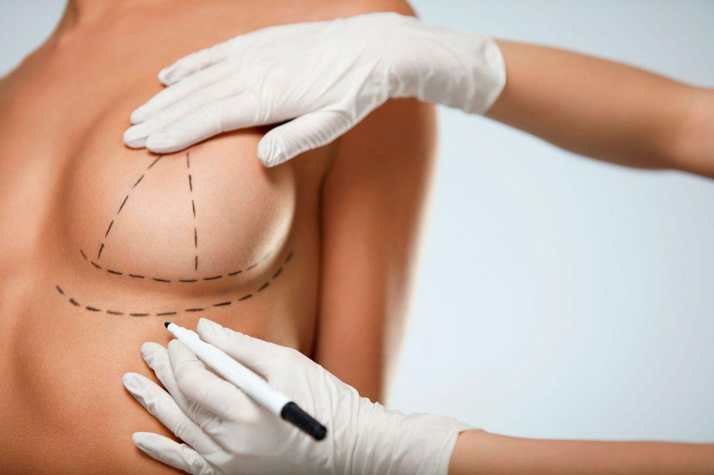 Médico demonstrando na mulher o desenho da protese de mama