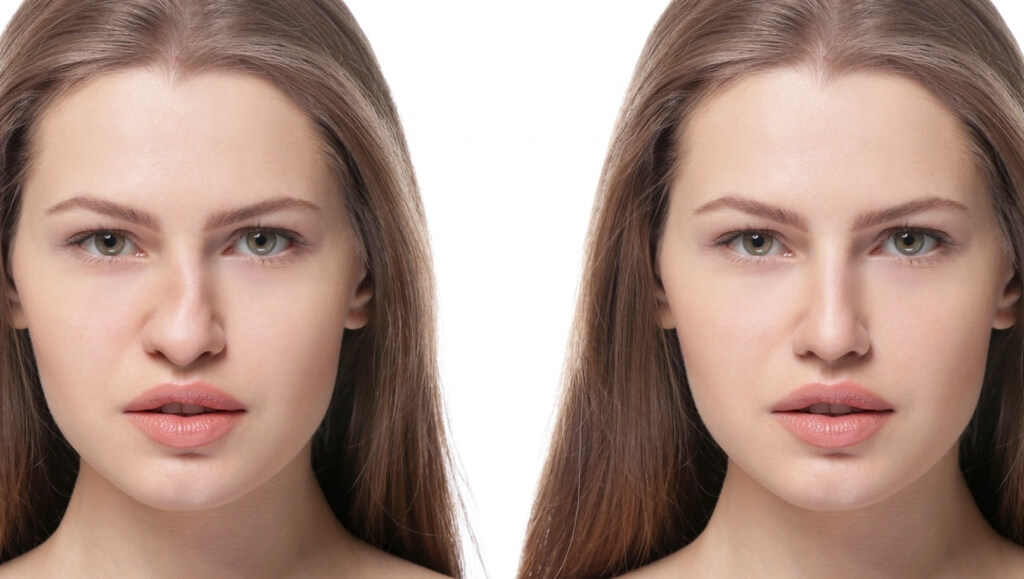 Foto de mulher demonstrando o antes e depois de rinoplastia para correção de nariz torto